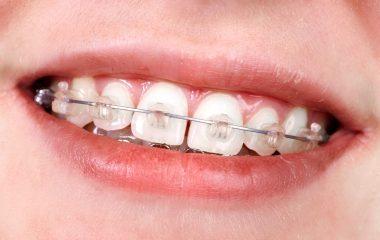 כיצד לשמור על השיניים